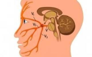 Болит голова в области левого глаза диагноз