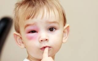 Ячмень на глазу у ребенка 11 месяцев как лечить