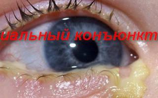 Бактериальный конъюнктивит глаз лечение у взрослых капли